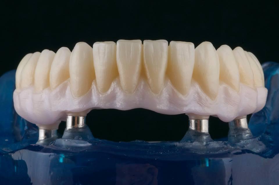 Bọc răng sứ Nacera và những điều cần biết - Nha khoa quốc tế Bally 1